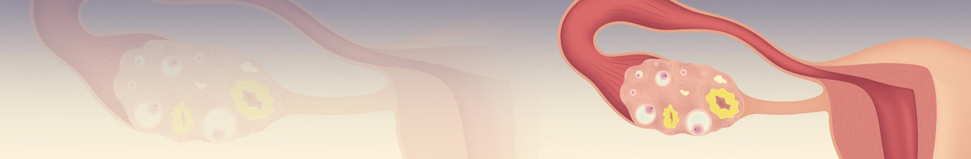 Reserva ovariana: veja como é feita a avaliação