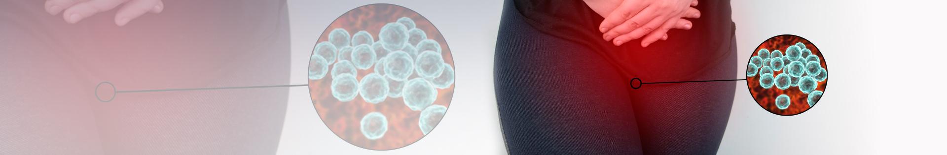 Sintomas da clamídia: quais são?